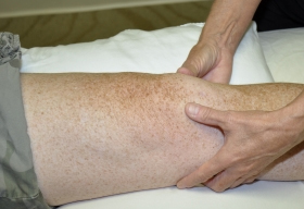 Lymphatic Therapy for Pre & Post Surgery in Boca Raton, FL